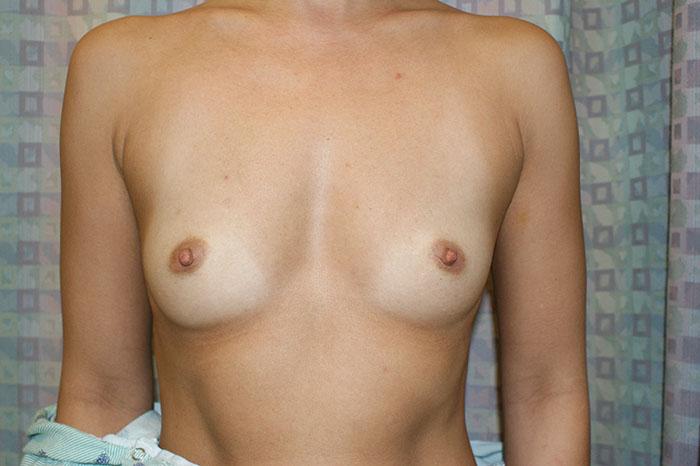 miami breast augmentation