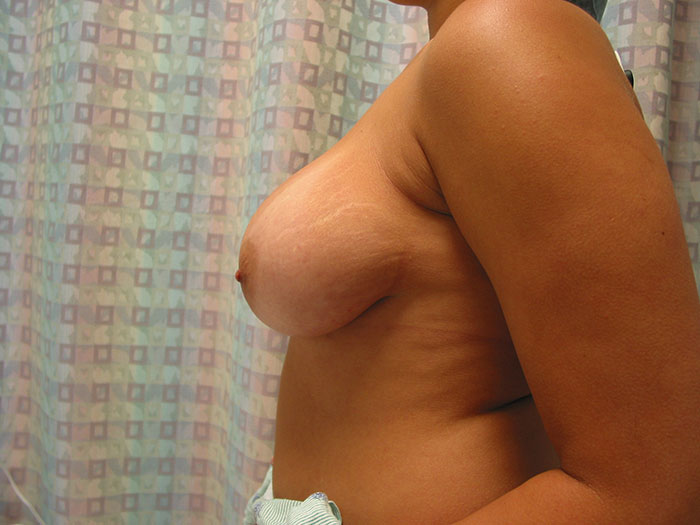 breast lift in miami